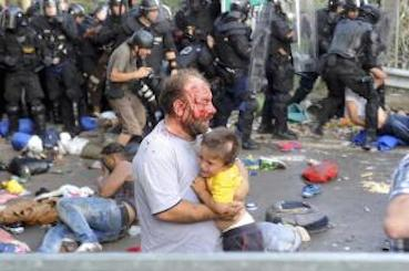 A migrant battered by Hungarian police, with his child