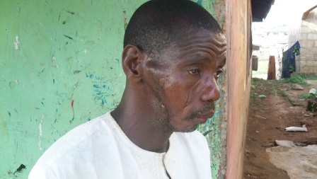 Ismaila Alade: While others escaped being killed, he was hit on the  jaw by bullets from the gun shots fired by the attackers. His jaw, teeth and bones were shattered.