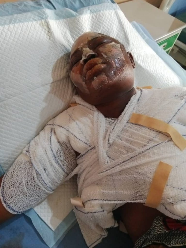 Comfort Ajayi: The fire accident victim