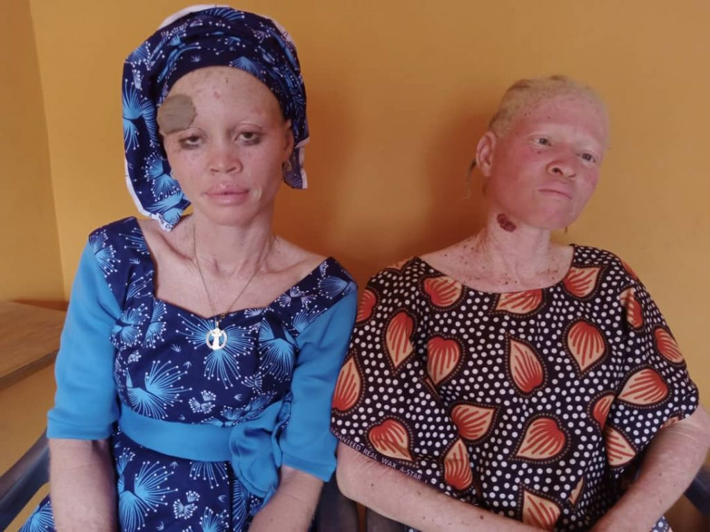 Two members of Ogun Albino Foundation in need of funds to treat skin cancer