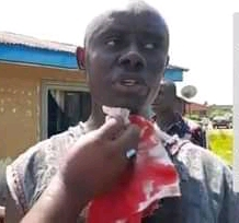 Hon. Tumini Jaja, the Opobo Ward 7 PDP councillorship candidate  reportedly attacked by some hoodlums drenched in blood.